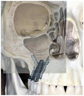 implantat_bochum1