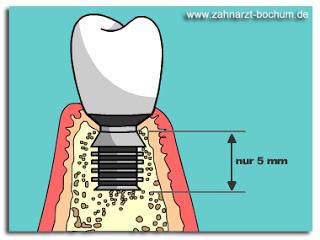 short_implants