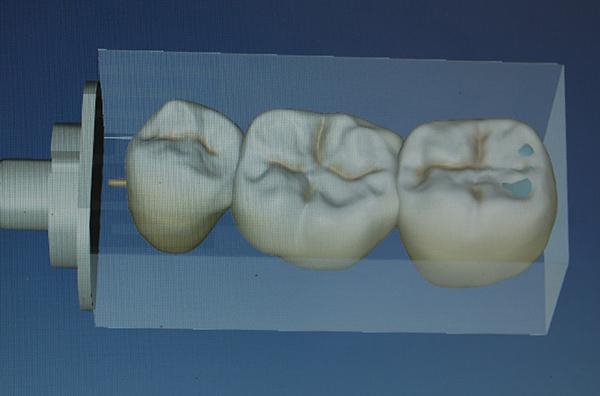Virtuelles Bild einer Keramikbrücke